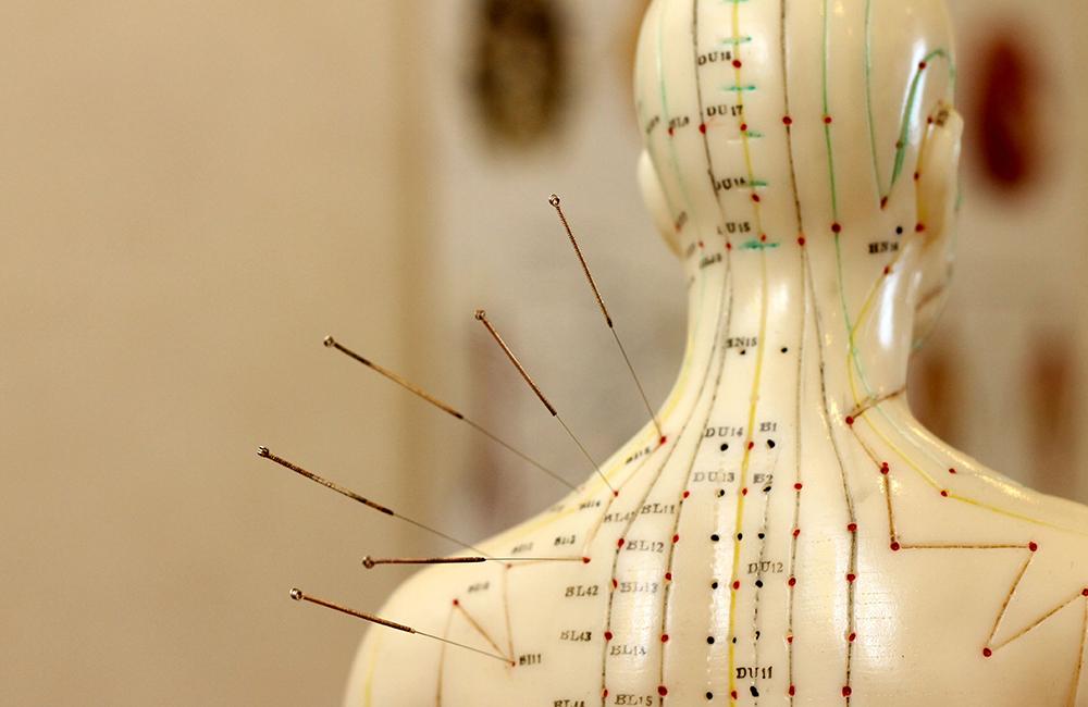 Akupunktur die Naturheilpraxis